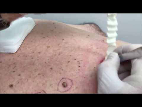 Top 5 Most Popular Videos - All Time Highlights and Procedures
