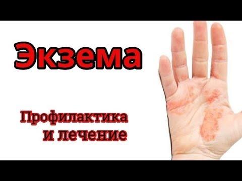 Экзема на руках и лице. Лечение и профилактика