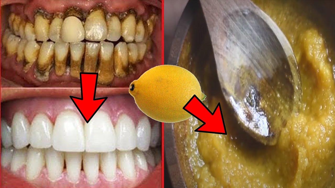 2 मिनट में पीले दांत मोतियों से सफेद चमकने लग जायेंग बस इसे Toothpaste में मिलाकर लगा लो।