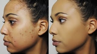How I Cover Dark Spots & Acne Scars | Ashley Bond Beauty