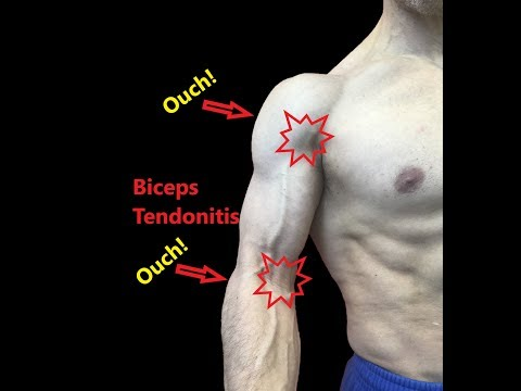 Biceps Tendonitis Stretches and Fascial Release