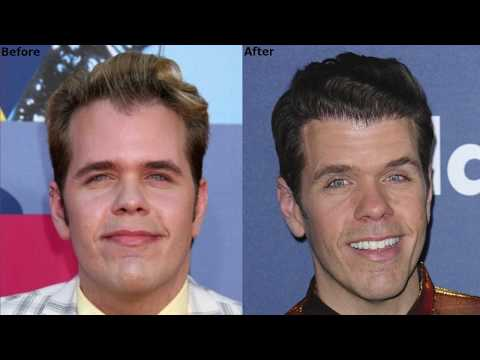 perez-hilton-discusses-his-latest-fue-hair-transplant-experience