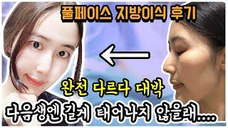 코필러 + 얼굴지방이식 + 이마 팔자주름 필러,  김기…