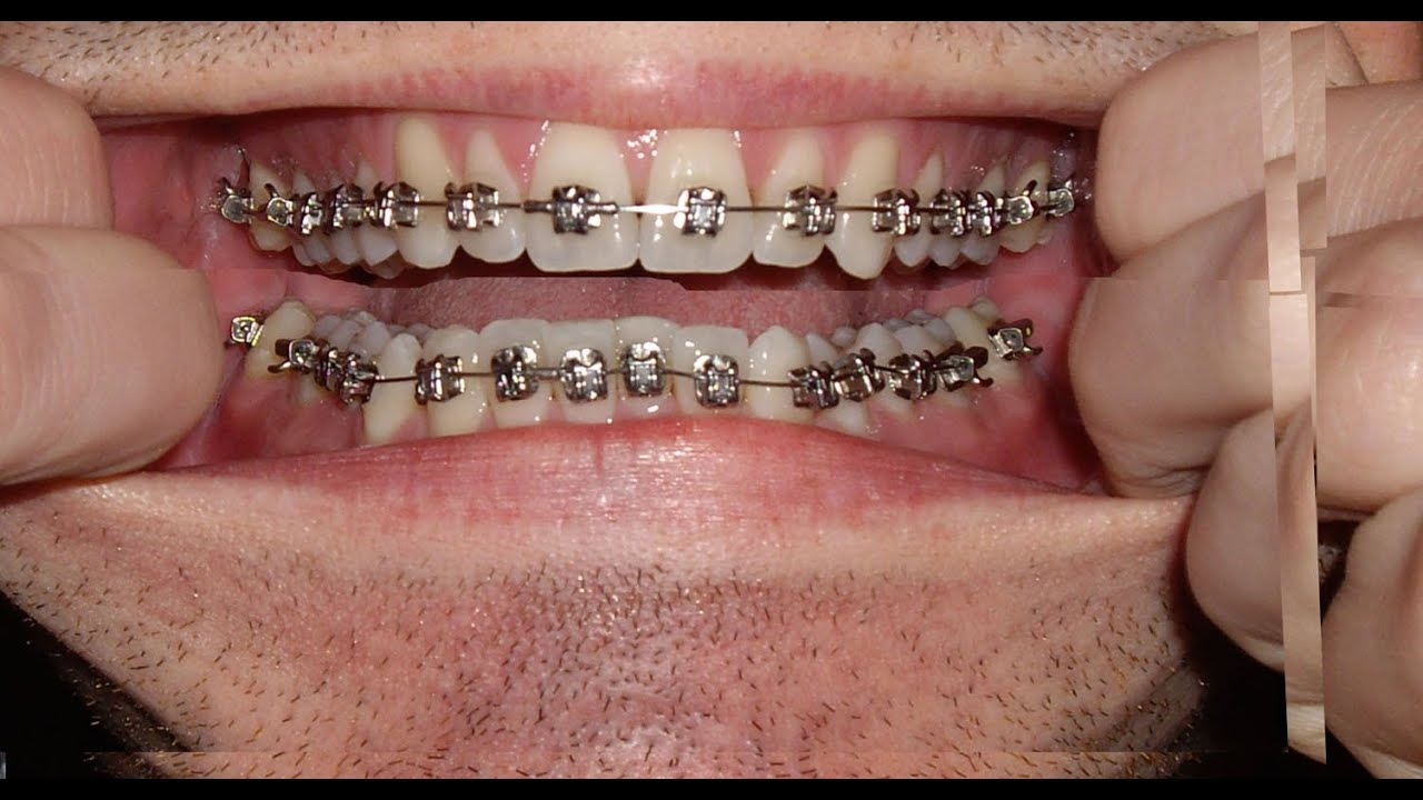 Braces Photo Taken Every Day Before And After