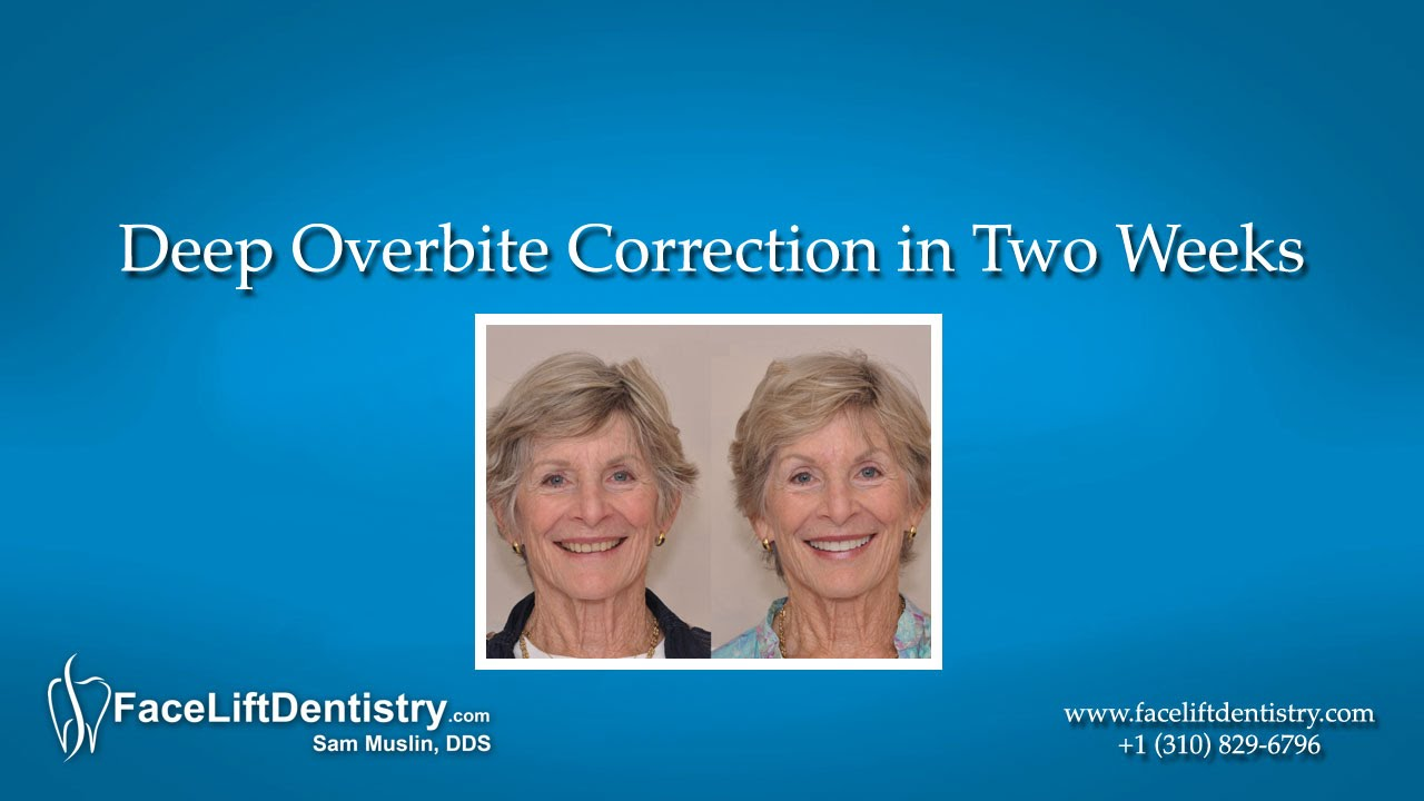 Deep Overbite Correction in Two Weeks - YouTube