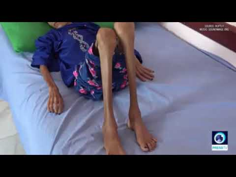 12-year-old Yemeni girl weighs 10kg due to severe malnutrition