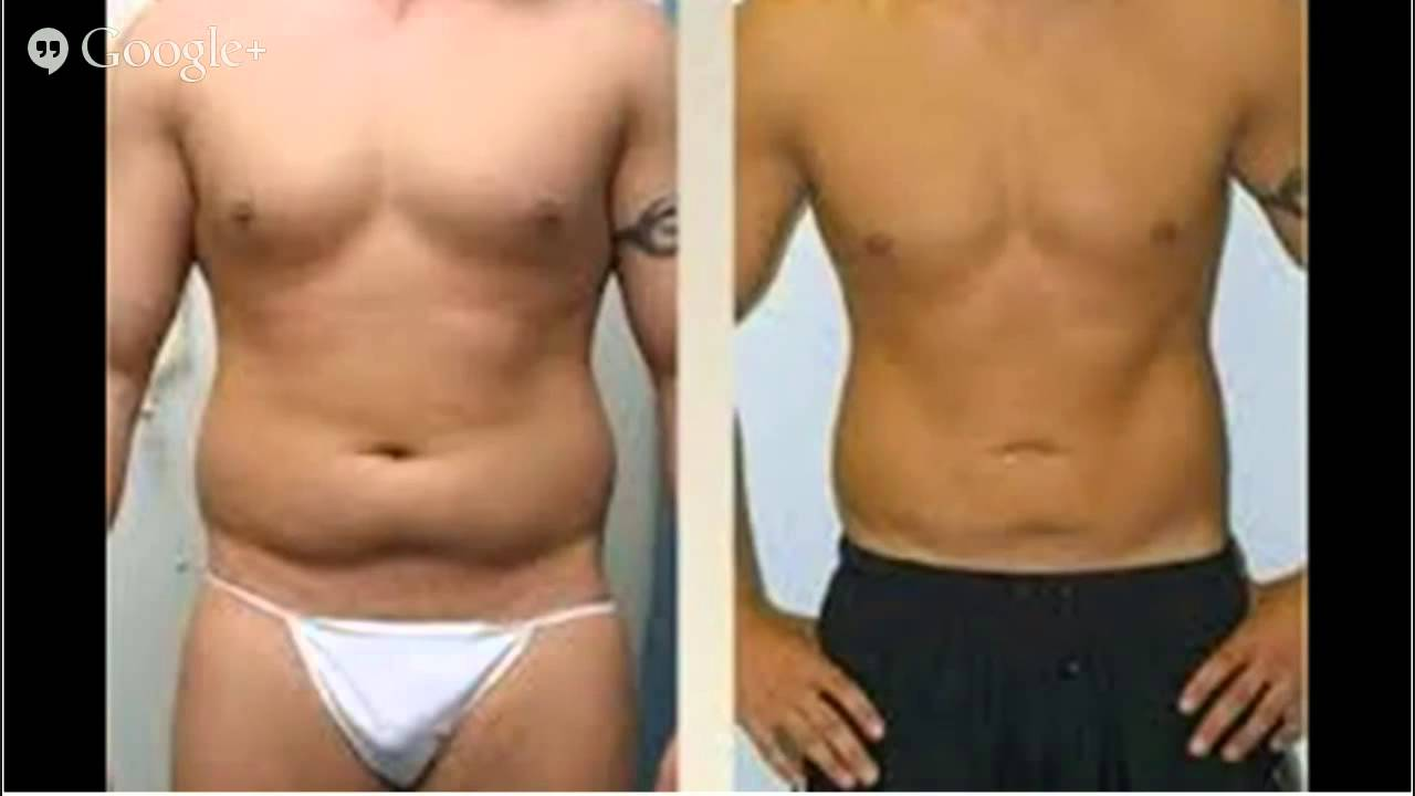 Before And After Liposuction Pictures - Lipo]