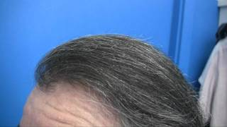 Before and After Hair Transplant - Doctor Wong Patient - 5825 Grafts