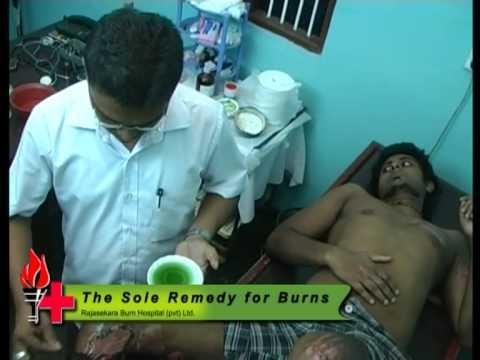 sri lankan traditional burn treatment 2