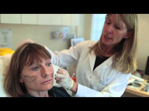 Non-surgical facelift (the Y-Lift) with Restylane Sub-Q Dermal filler