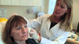 Non-surgical facelift (the Y-Lift) with Restylane Sub-Q Dermal filler Thumbnail