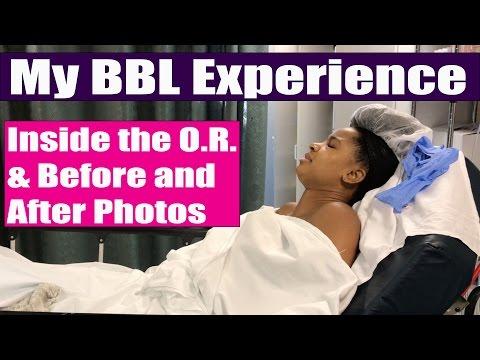 Brazilian Butt Lift Experience   BBL Surgery: Before & After