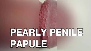 Papules penile why pearly you get do What is