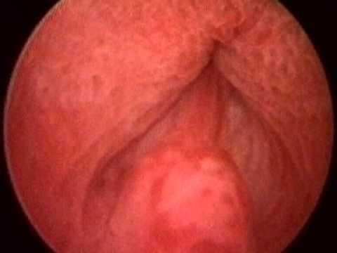 Orgasm from ejaculation