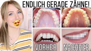 VORHER/NACHHER: SO sehen meine Zähne JETZT aus! Meine Erfahrung mit Invisalign! TheBeauty2go