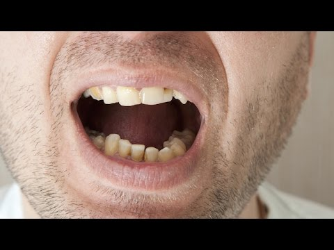 Reverse Tooth Decay Naturally By Just Doing This!