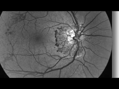 О патогенезе диабетической ретинопатии | диабетической | диабетическая | ретинопатия | ретинопатии | патогенез | лекция | новый