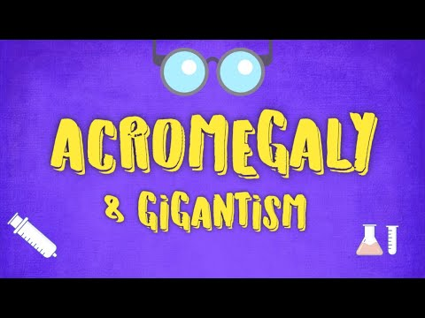 Acromegaly & Gigantism - Causes,Symptoms,Diagnosis & Treatment USMLE