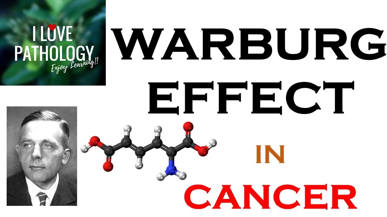 the warburg effect is the seventh hallmark of cancer Vitamin c uncouples the warburg metabolic switch  is currently considered as the seventh hallmark in cancer  warburg effect and it is a hallmark in cancer [8.