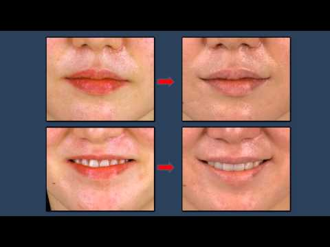 Mouth corner lift [Korea plastic surgery]