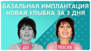 Смотреть видео Как пациентка из Тольятти восстановила все зубы в Москве всего за ТРИ дня! Реальный отзыв онлайн