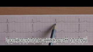 OSCE-1.НМУ им.А.А.Богомольца.Регистрация и анализ ЭКГ(официальная версия)