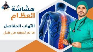 ٤٨ علاج هشاشة العظام والتهاب المفاصل الفعال _تاكل الغضاريف _ كلام لم تسمعه من قبل