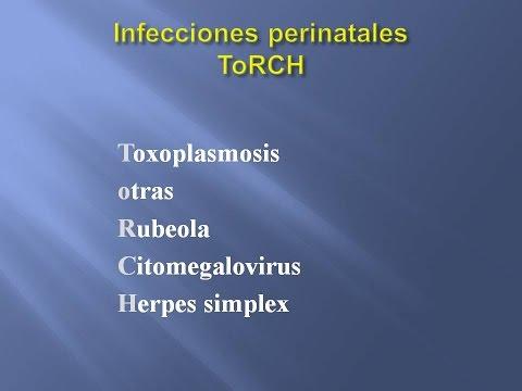 Dr Enrique Orchansky - infecciones perinatales ToRCH