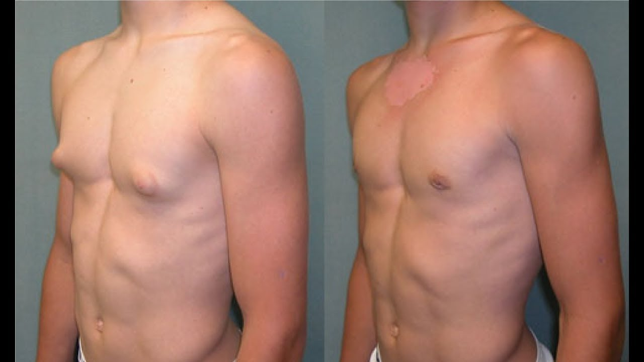 Gynecomastia Treatment Without Surgery - Youtube-1097