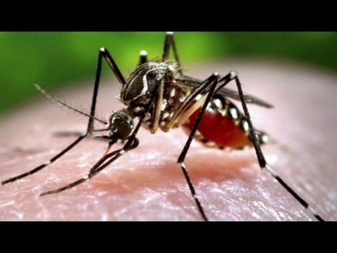 Zika fears grow in U.S. after baby born with birth defect