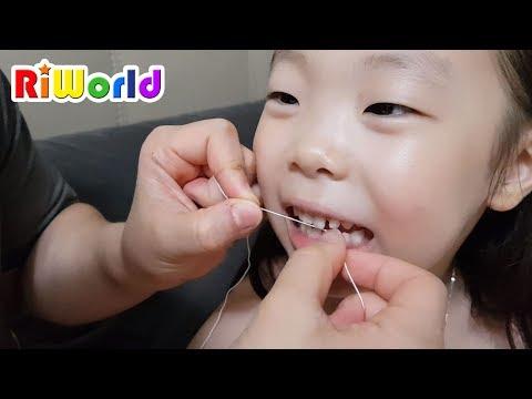 毽洂鞚挫潣 鞙楇媹臧� 牍犾鞏挫殧! 鞛皩電� 鞎炿媹 牍缄赴 虢戧赴 霃勳爠. My Front Tooth fell out. Kids Toy . RIWORLD. 毽洂靹胳儊