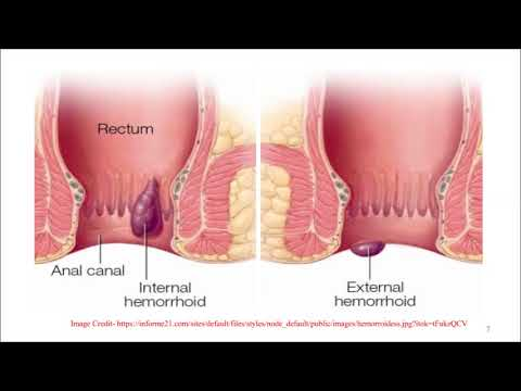 Piles- symptoms and treatment by Solution-Pharmacy in HINDI