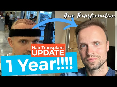 1 Year Hair Transplant Results, 2019 to 2020 Turkey Istanbul 4200 Grafts
