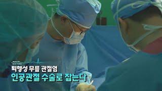 [닥터스] 퇴행성 무릎관절염 인공관절 수술로 잡는다! …