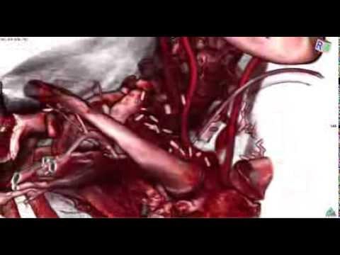 Innominate Artery Trauma via Tracheostomy - YouTube