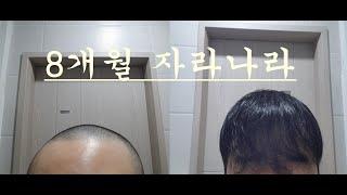 자라나라 머리머리(8개월 과정) + 모발이식(예고)