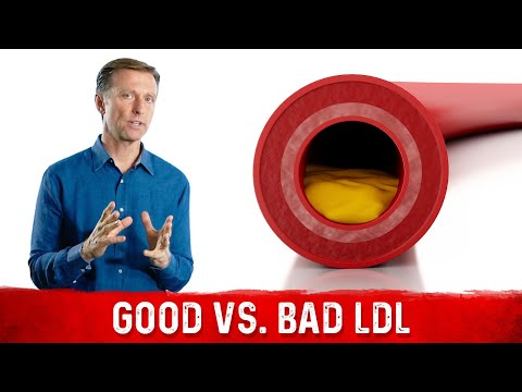 You Have Good and Bad LDL (low-density lipoprotein)