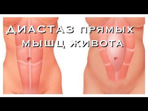 ДИАСТАЗ прямых мышц живота после РОДОВ! - YouTube