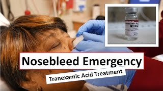 Nosebleed Emergency and Tranexamic Acid Treatment