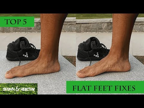 top-5-ways-to-fix-flat-feet