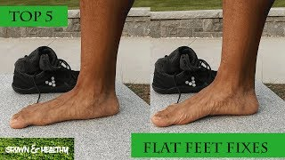 Top 5 Ways to Fix Flat Feet