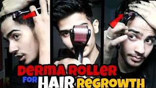 DERMA ROLLER for Hair growth and Hairline