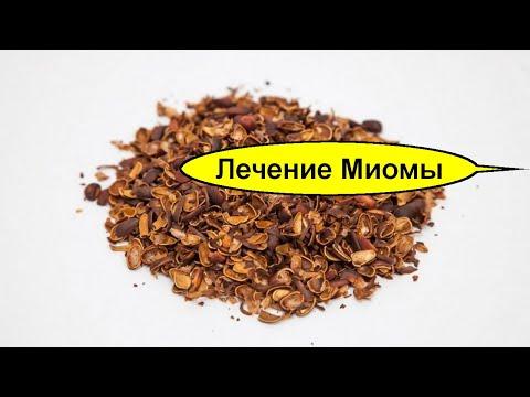Настойка скорлупы кедровых орехов при миоме.  Лечение миомы матки народными средствами