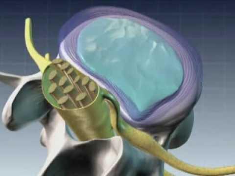 Nucleoplastia coloanei vertebrale