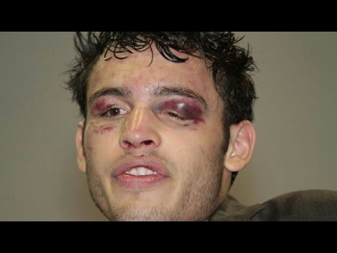 Thumbnail: Julio Chavez jr. explains what went wrong in the Canelo fight
