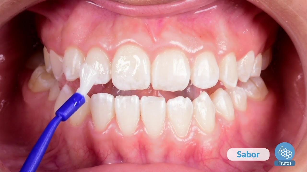 Como quitar sarro dentista