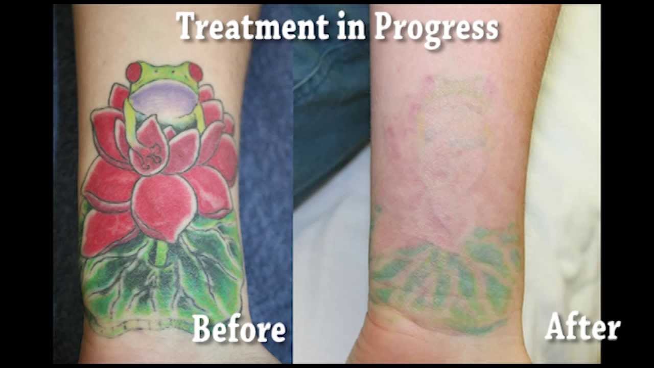 Bright color tattoo removal youtube for Tattoo removal baton rouge