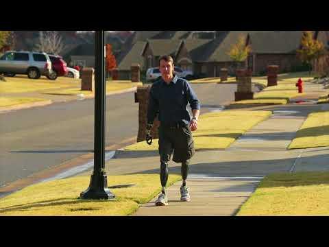 Show Your Heart - Dream Team Prosthetics Patients Success