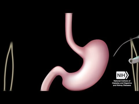 What is Bariatric Surgery?