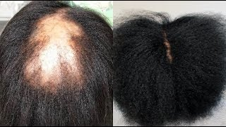 Your hair will GROW like CRAZY! I Promise That After Using This Your Hair Will Never Stop Growing